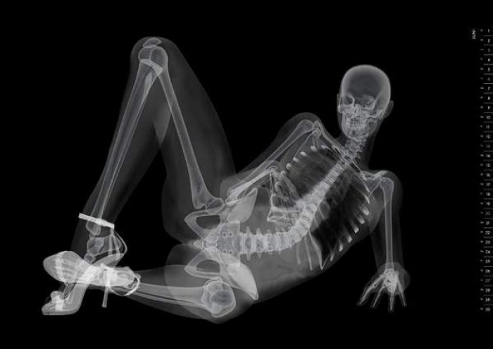 of pin-up models, something like the fantastic work of Nick Veasey.